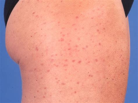 hives nl picture 1