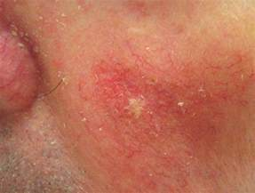 advanced squamous cell skin cancer picture 17