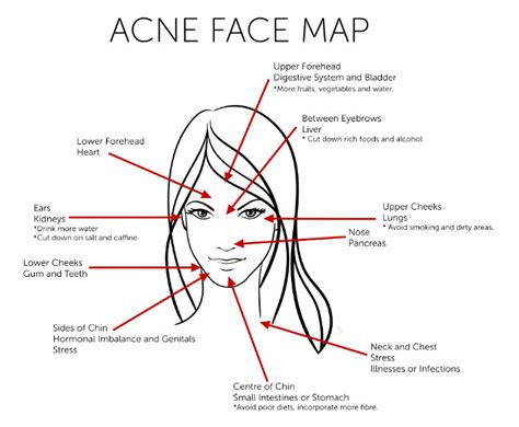 acne forehead digestion picture 9