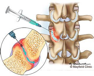 cervical facet joint procedure picture 1