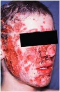 acne cysts picture 19