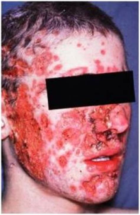does masterbation cause acne picture 5