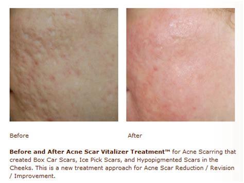 acne ling tukwila wa picture 9