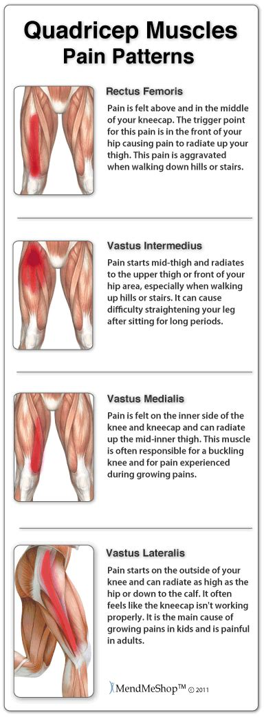 Causes of muscle spasms picture 2