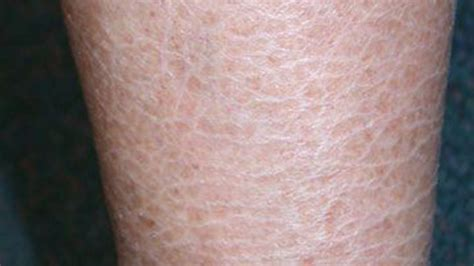 dry red skin patches picture 3