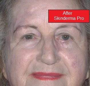 scars skinderma pro photos picture 9