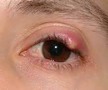 pain after wart removed from eyelid picture 3