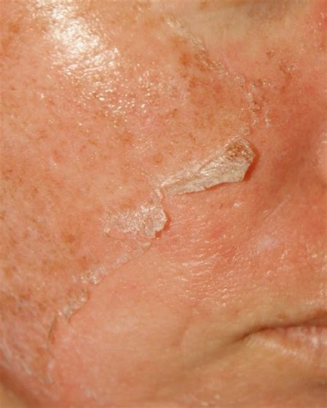 rash on face and joint pain picture 7