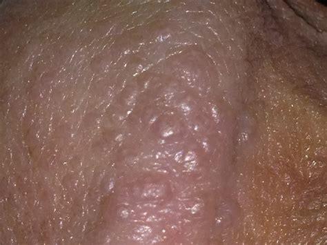 no masturbation cure for acne picture 1