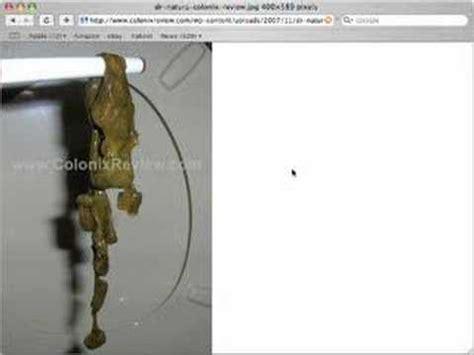 colon detox dr. natura picture 15