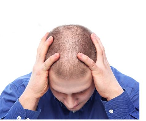 lower testosterone hair loss picture 3