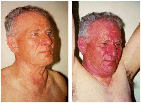 diseases for thyroid in cava in fiji picture 2