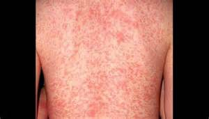 scabies skin rash picture 14