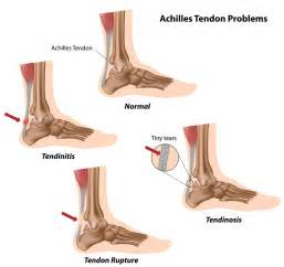 ankle joint effusion and ruptured achilles tendon picture 4