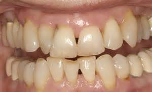 crooked teeth picture 5