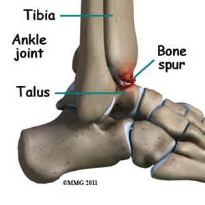 knee joint bone spurs growth time picture 1