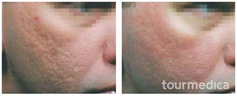 acne scar lasers in poland warsaw picture 5