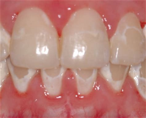 can weak spots in teeth be fixed picture 10