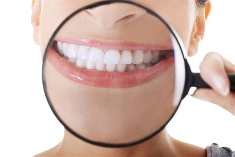 california whiten teeth picture 11