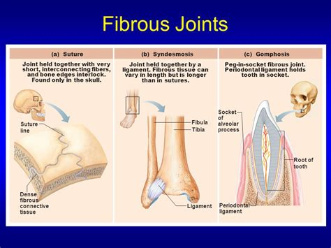 fibrous joint picture 5