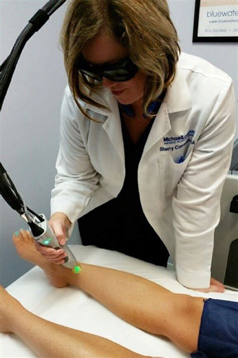 chapel hill laser hair removal picture 2