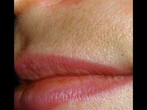 Discoloration and irritation on upper lip picture 3