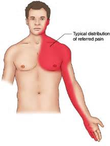 left chest wall muscle aches picture 3