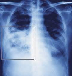 microbacterial pneumonia picture 6