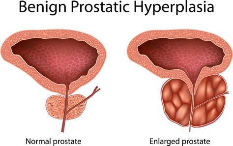 prostatic hypertrophy picture 5