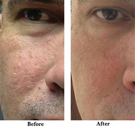 pueraria mirifica men before and after pictures picture 2