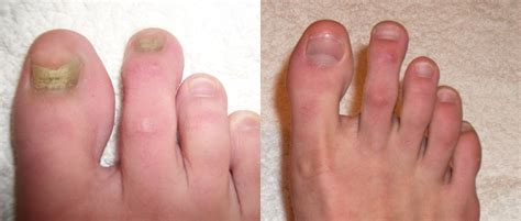 toe nail laser treatment in new mexico picture 15