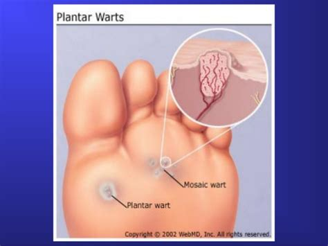 a picture of plantar warts picture 13