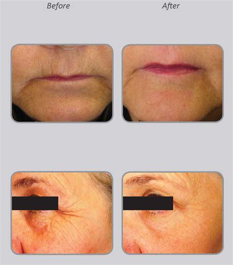 co2 laser acne treatment picture 6