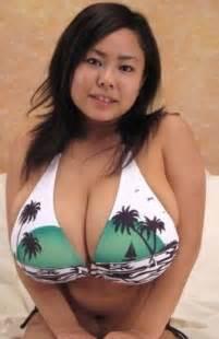 mastasia breast implants picture 5