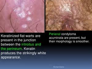 genital wart treatment picture 3