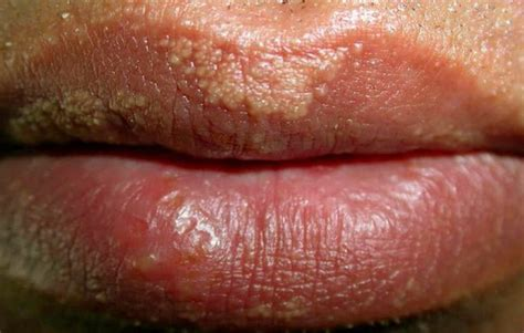 fordyce spots on lips and homeopathy picture 6