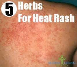 herbal remedy for hyperthyroidism picture 9