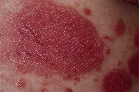 pain relief for vaginal thrush picture 9