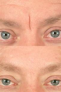 information laser skin surgery picture 6