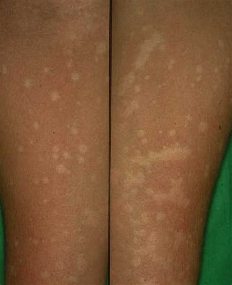 skin macules picture 2
