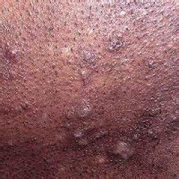 razer burn on vagina pics picture 13