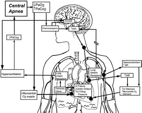 central sleep apnea picture 18