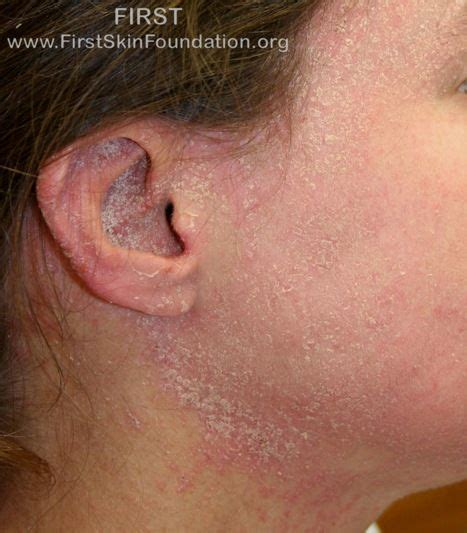 ecd skin disease picture 3
