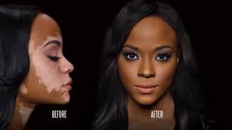dermatologist for black skin picture 3