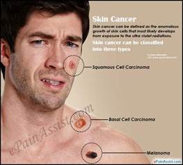 does skin cancer hurt picture 6