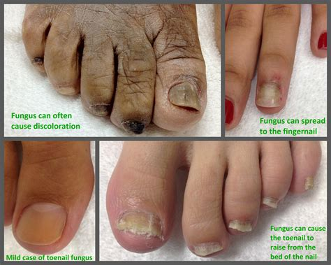 toenail fungus treatment picture 7