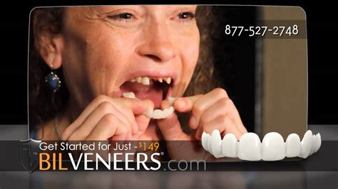 cheapest snap on veneers online picture 9