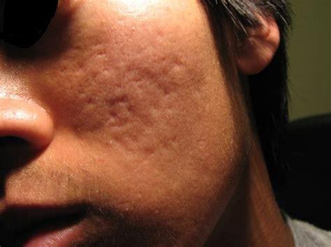 skin pigmentation problems picture 3
