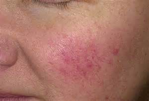 couperose skin problem picture 14