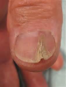 dermatologist female patient picture 15